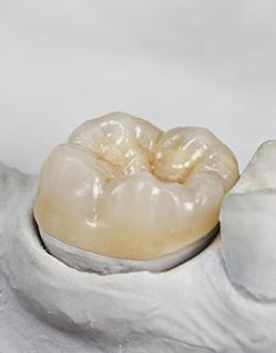 tooth colored crown
