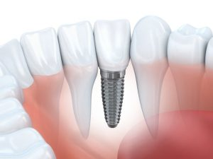teeth dental implant