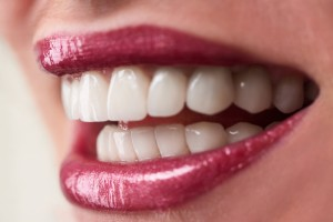 Dental implants can bring proper stability and looks back to your smile.