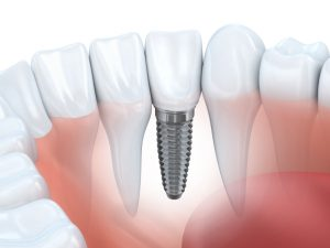 dental implants in mt pleasant tx